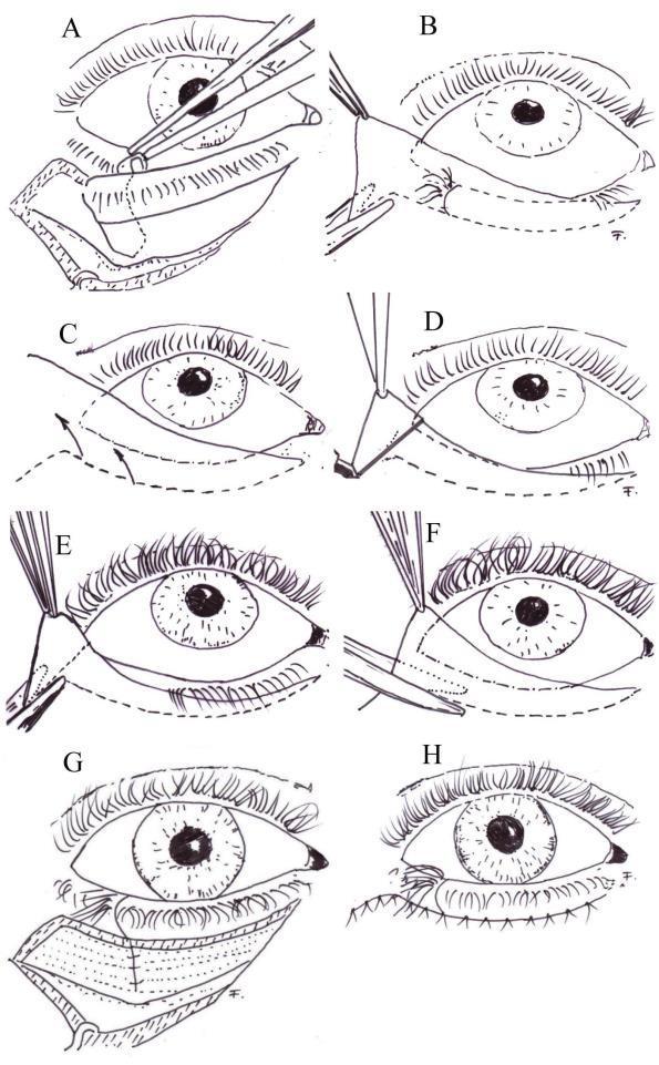 a genitális szemölcsök plazma koagulációja