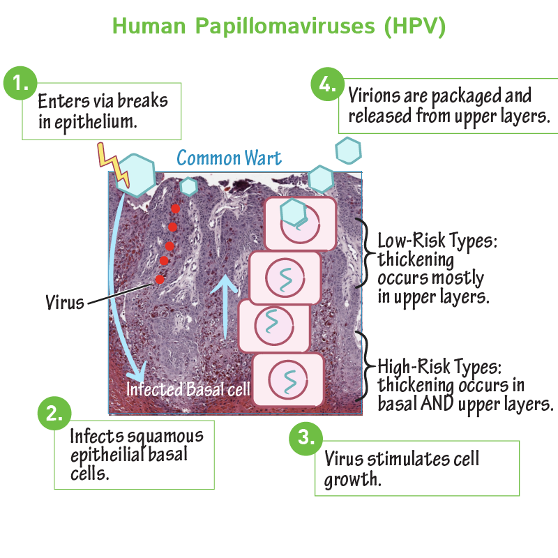 papillomavírus vagy mycosis