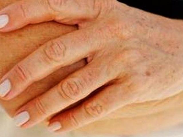 papillómák kezelése ricinusolajjal