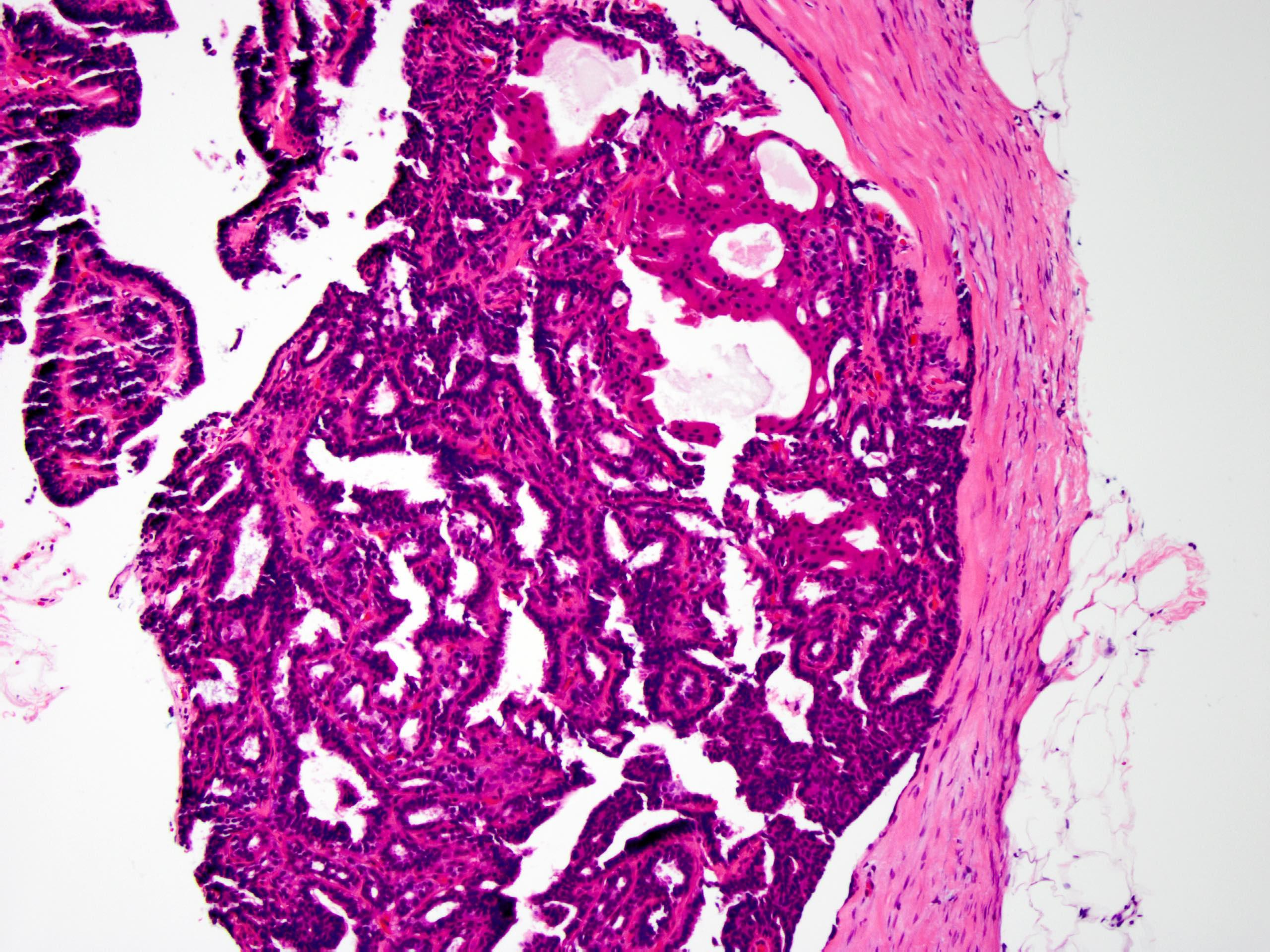 intraductalis papilloma apokrin atypiával)