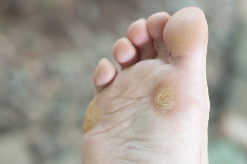 férgek neve természetes orvosság pinworm paraziták ellen