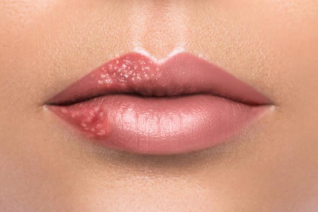 condyloma jelei az ajkakon