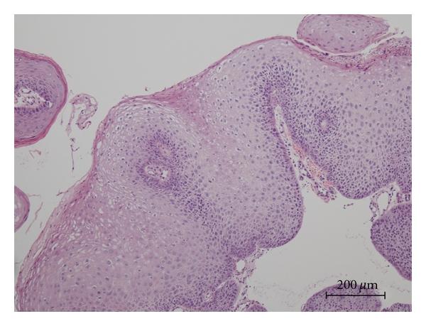 a condyloma oka