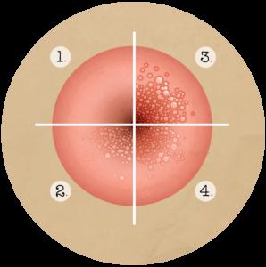 hpv vírus és súlygyarapodás