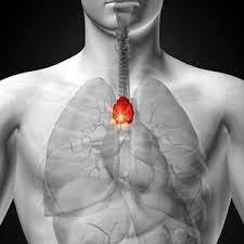 mediastinalis rák tünetei