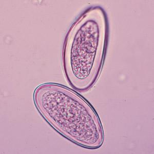 Az enterobiosis férgek, Trichuriasis