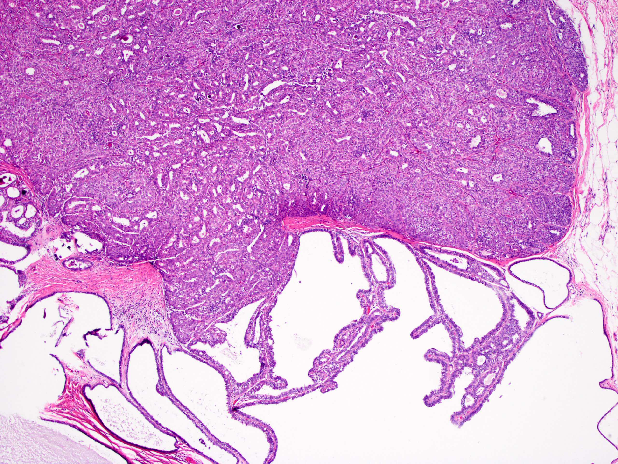 intraductalis papilloma dcis