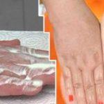 A genitális szemölcsök eltávolítását követő festők, WARTNER Szemцlcsfagyasztу spray (50ml)