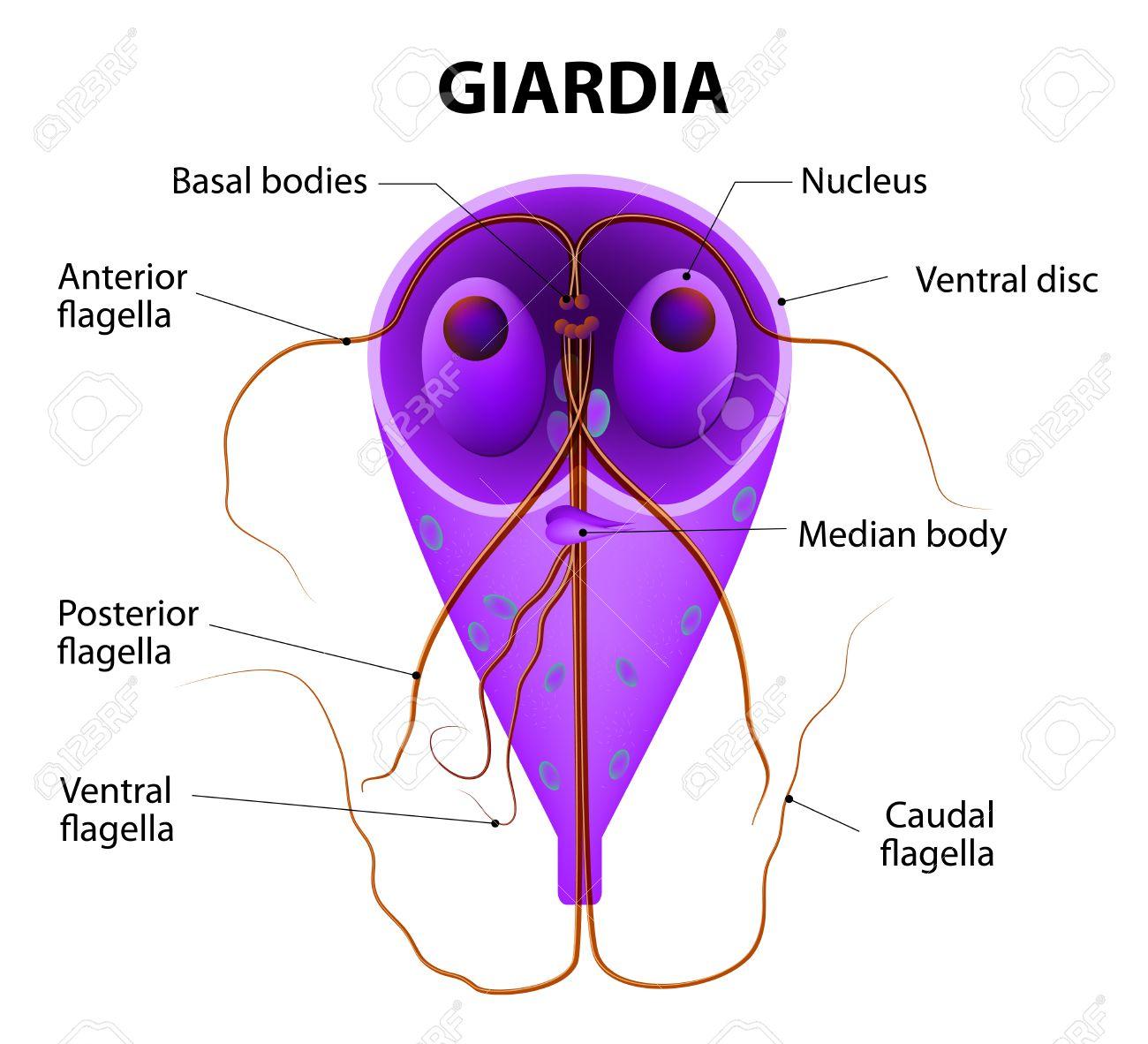 Giardia-fertőzés (giardiasis)