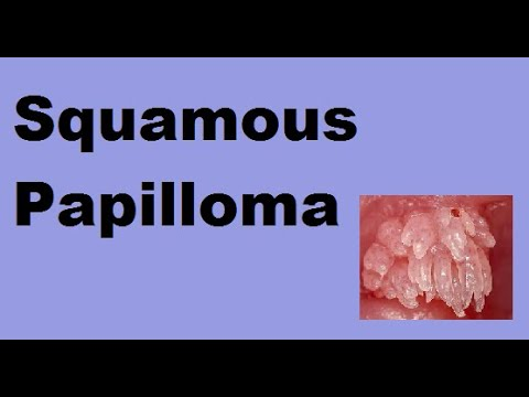 anorectalis papilloma