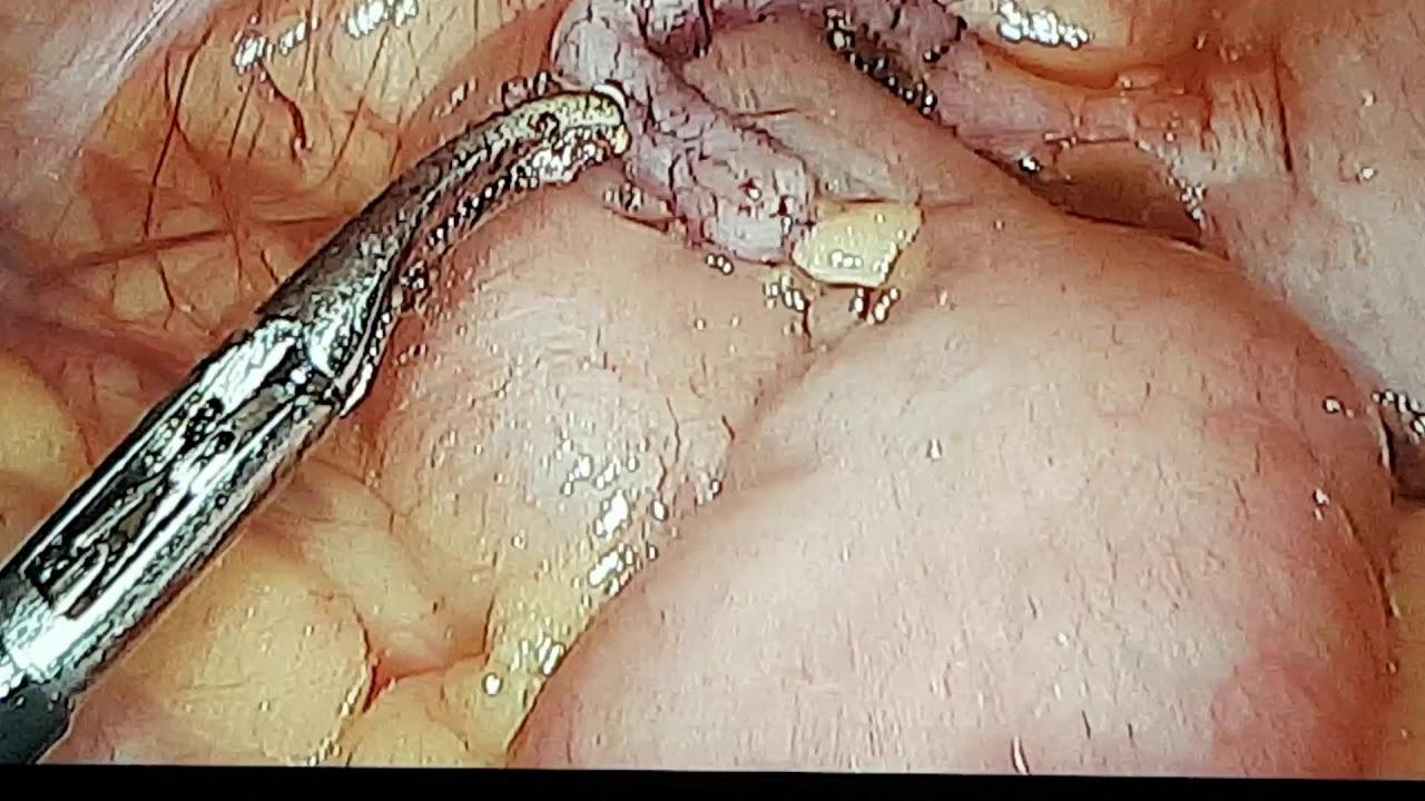 enterobius vermicularis baba hpv vírus a bőrön