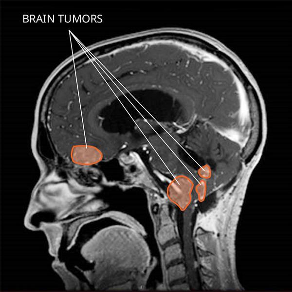 Methylation profiling of choroid plexus tumors reveals 3 clinically distinct subgroups