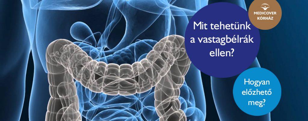 Vastagbélrák: hogyan igényelhető ingyenes, elsőbbségi genetikai teszt?   tancsicsmuvelodesihaz.hu
