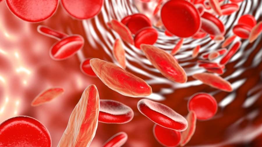 vérszegénység állapota