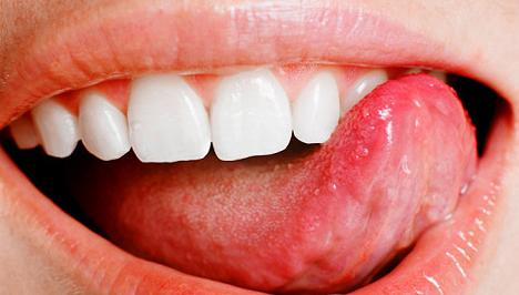 a szájüregi rák kezelése