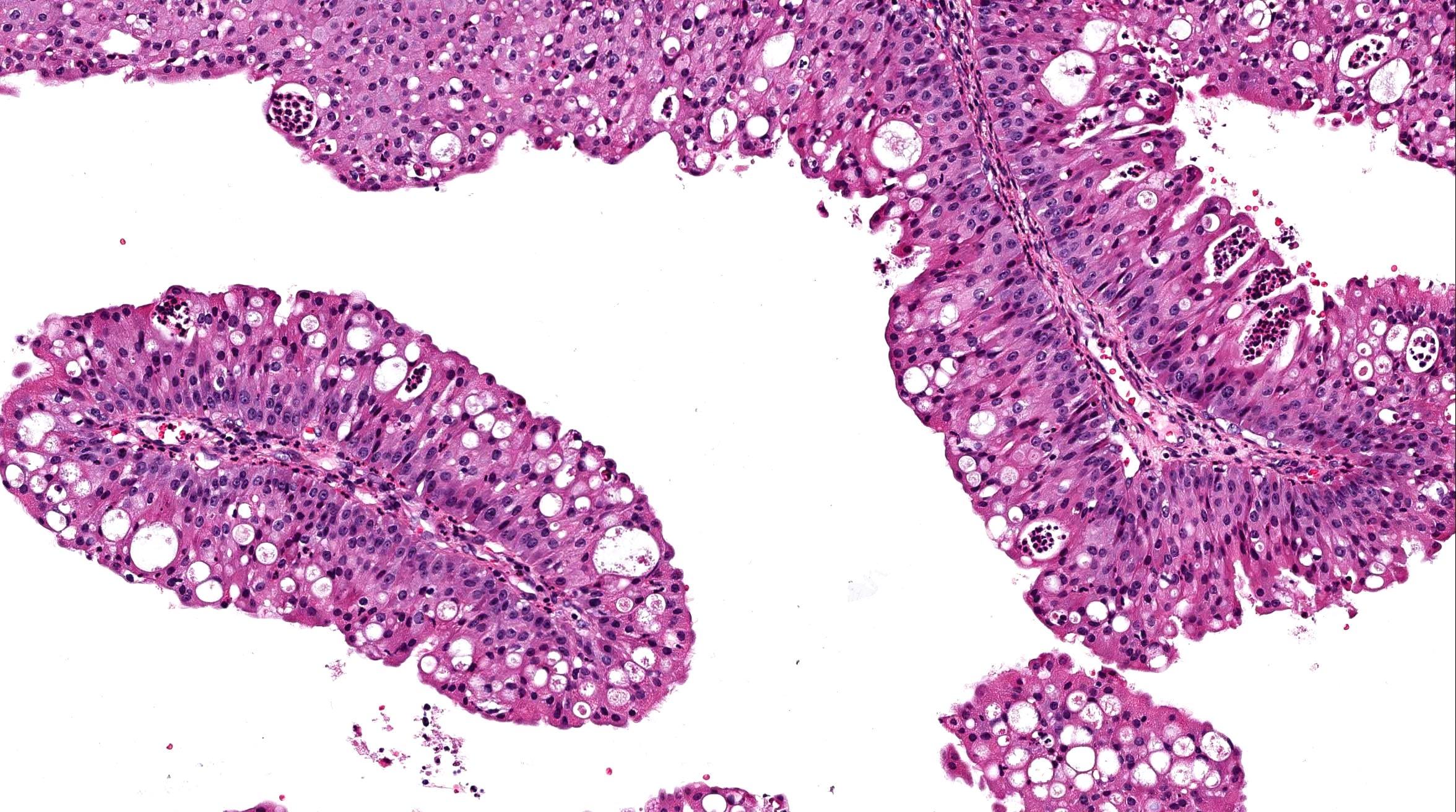 ami a papilloma metaplasia