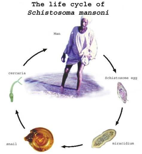 Vizelet schistosomiasis i. Húgyúti schistosomiasis