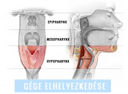 gége papillomatosis meghatározza)