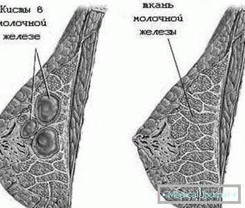 csatorna papilloma citológia hpv nyelv alaprák