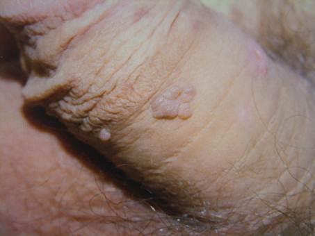 papilloma condyloma kezelés)