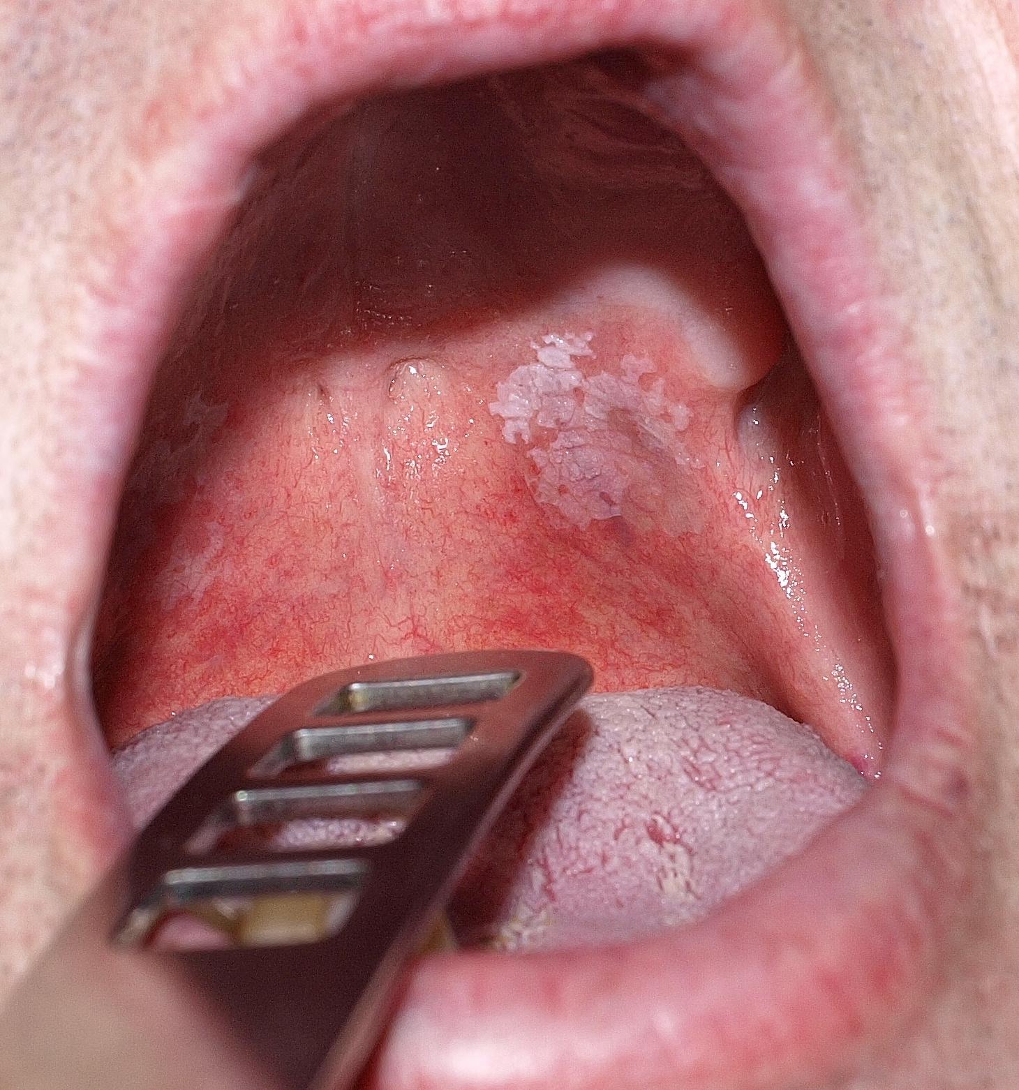 a hatékony féregtabletták áttekintése papilloma oltási vírus asl brescia