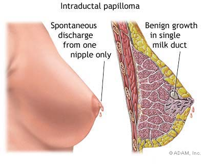papilloma tumor