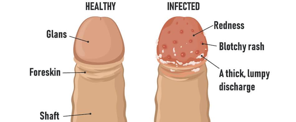 csipkebogyó tinktúra nemi szemölcsök genitális hpv tünetek