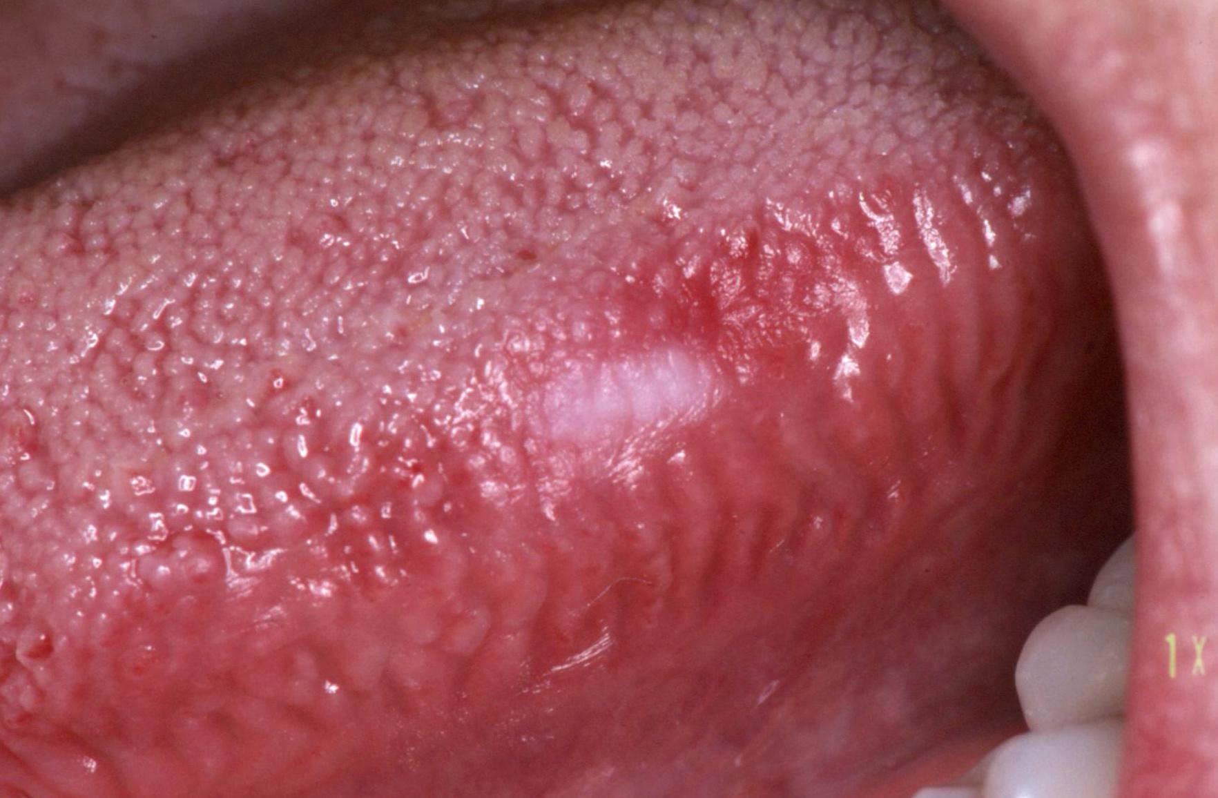 Pikkelyes nyelv papilloma, HPV-fertőzés tünetei és kezelése