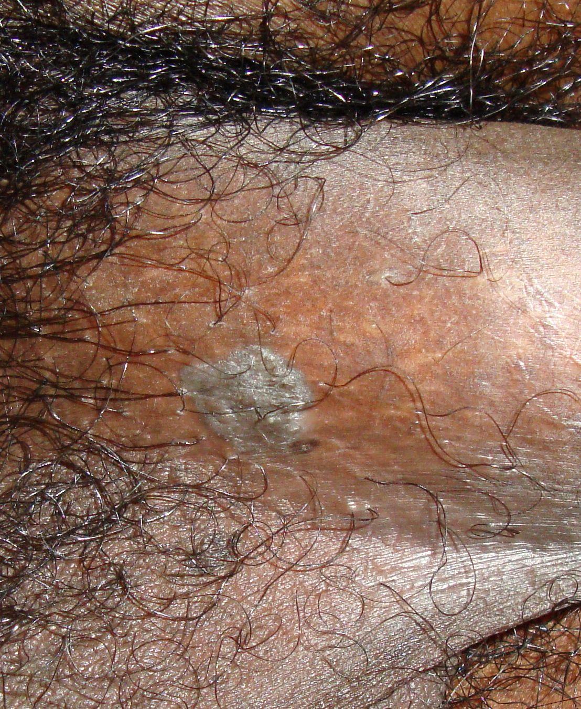 pikkelyes papilloma és condyloma acuminatum