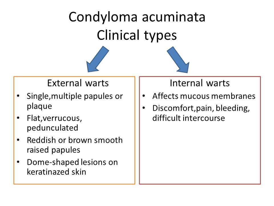 Hogyan kell kiejteni condyloma acuminatum   tancsicsmuvelodesihaz.hu