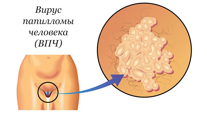 condylomy papilloma krém