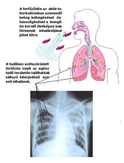 A tüdőrák típusai