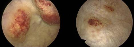 schistosomiasis hematuria petefészekrák hasi érzékenység