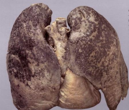 szarkóma rák a tüdőben