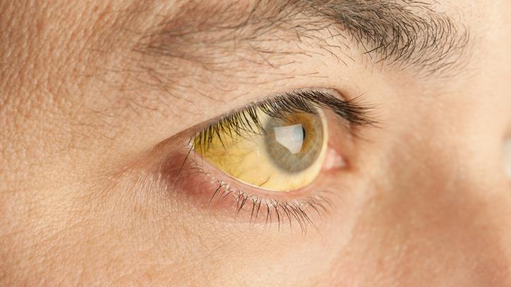 hasnyálmirigyrák enzimek gyógyulási folyamat a genitális szemölcsök eltávolítása után