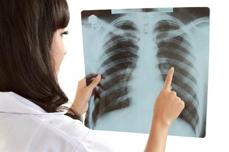 Papillómák és tüdőrák, A humán papillómavírus és a rák