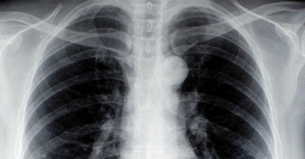 a tüdők típusai a tüdőben