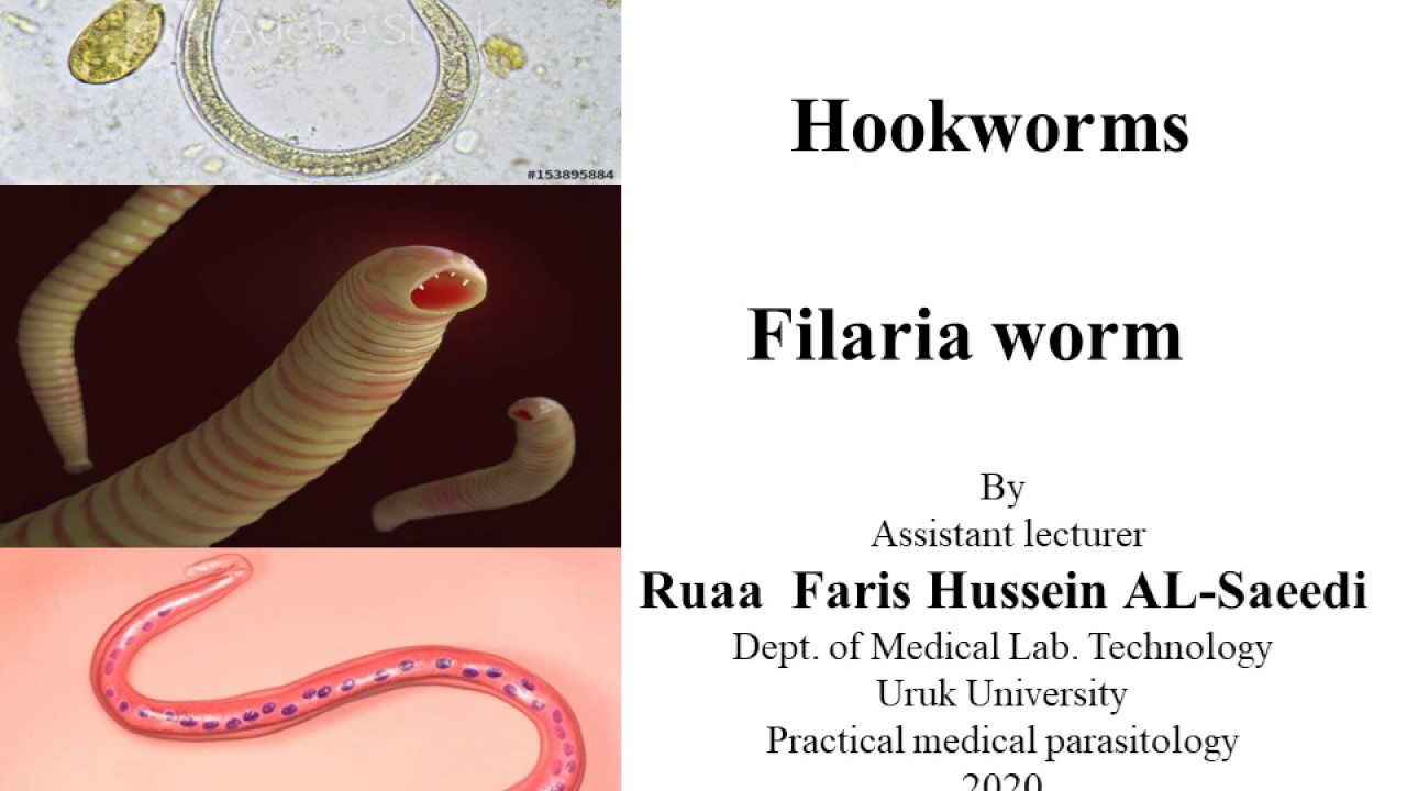 Pinworm tünetek az emberekben Hogyan ürülnek fel férgek egy felnőttkorban
