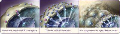 hormonreceptor pozitív rák)