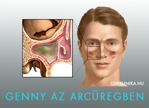 orr és orrmelléküreg daganatok tünetei kivizsgálása, orr rák és orrmelléküreg rák