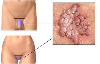 genitális szemölcsök férfiaknál az ágyék területén