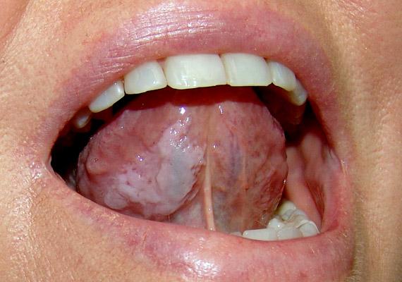rák a száj tetején kiújulások a genitális szemölcsök cauterizációja után