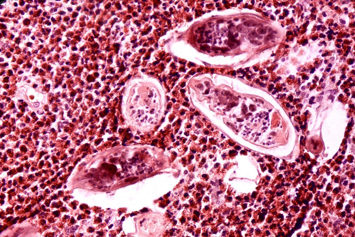 schistosomiasis hematuria papilloma vírus meddig él