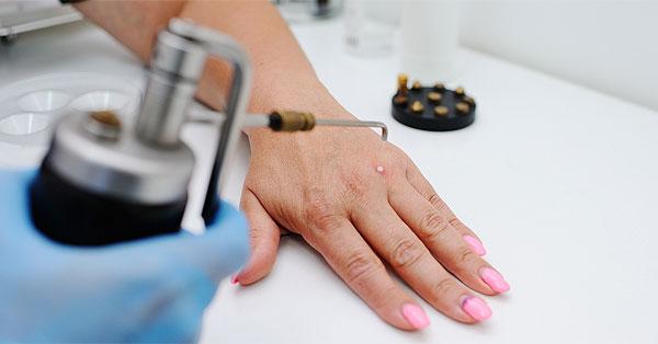 szemölcs kezelés ujján a csont szarkóma rákja