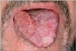 papilloma vírus szájdaganat)