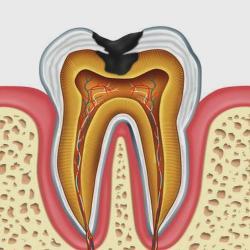 a fogbetegségek lelki háttere)