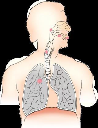 A csontrák klinikai stádiumbeosztása