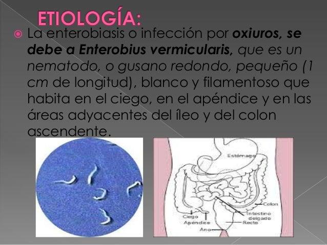 enterobiasis etiológia)