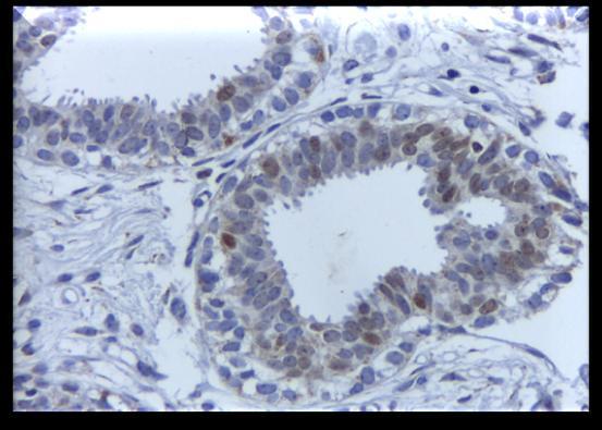 papilloma vírus tesztek az ember számára hpv gebarmutterhalskrebs warzen
