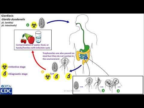 parazita lentec kiterjedt kezelés gomba példák